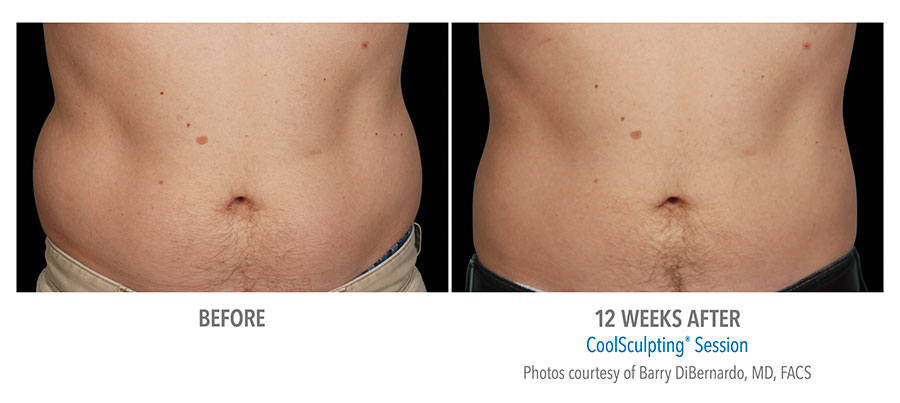 men coolsculpting before after