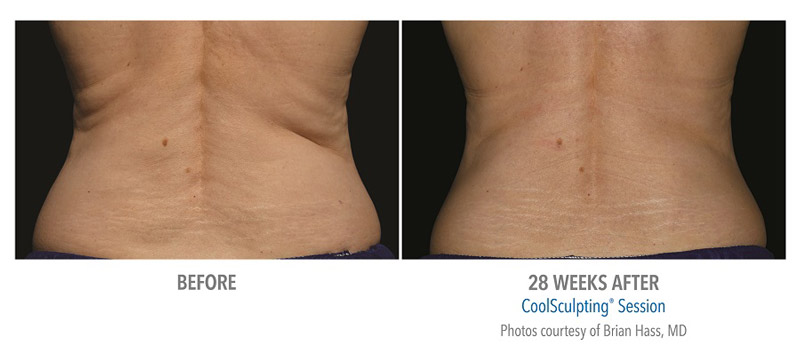 coolsculpting new mexico